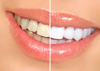 Cosmetic Dentistry Fairfax VA - Dr. Stephen St. Louis