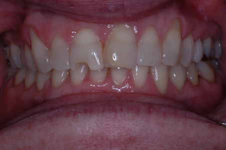 Before: Four front porcelain veneers to whiten and improve smile.