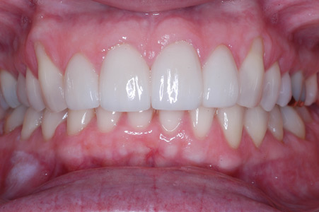 After: Four front porcelain veneers to whiten and improve smile.